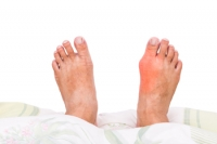 Gout Can Cause Pain and Discomfort